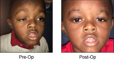 Pediatric Arthritis Specialist Finder
